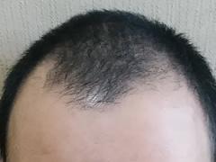 脱毛の原因